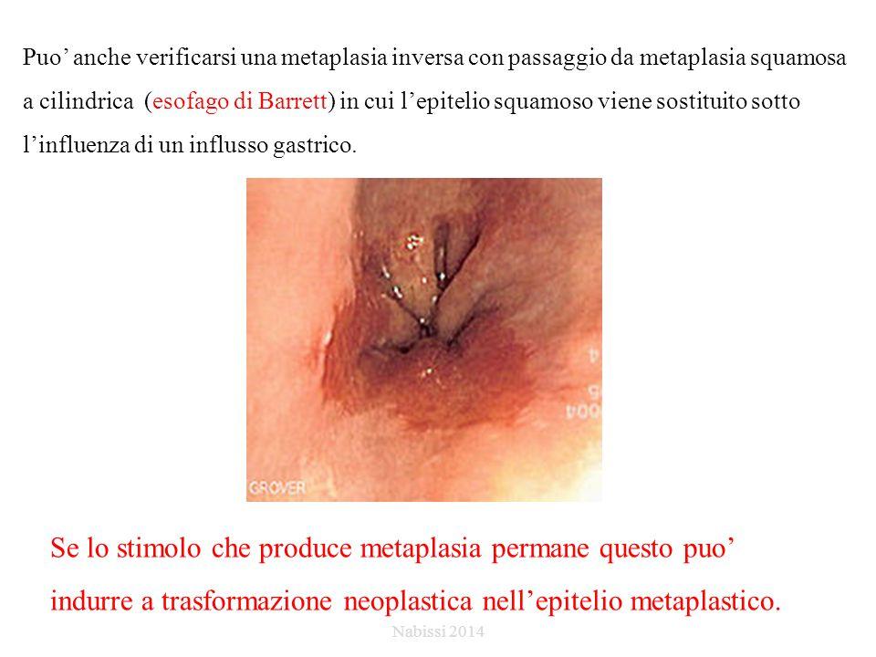 Puo' anche verificarsi una metaplasia inversa con passaggio da metaplasia squamosa a cilindrica (esofago di Barrett) in cui l'epitelio squamoso viene sostituito sotto l'influenza di un influsso gastrico.
