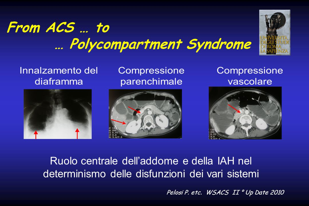From ACS … to … Polycompartment Syndrome