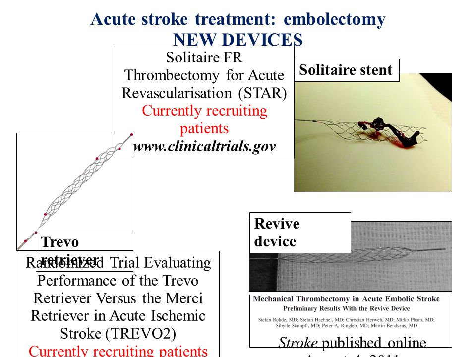 Acute stroke treatment: embolectomy