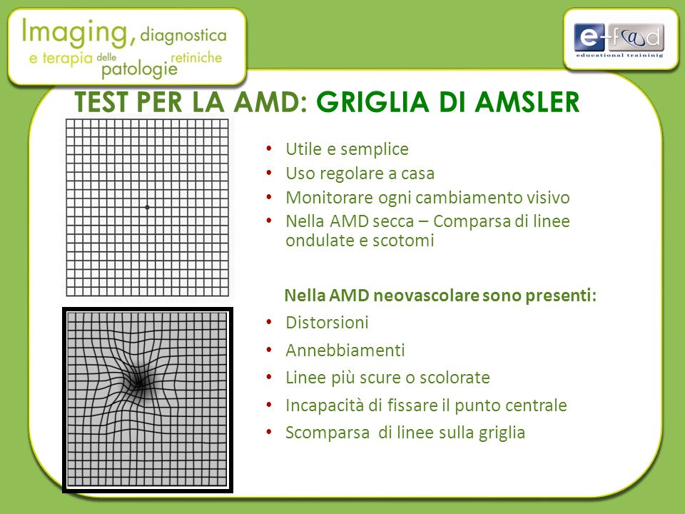 TEST PER LA AMD: GRIGLIA DI AMSLER
