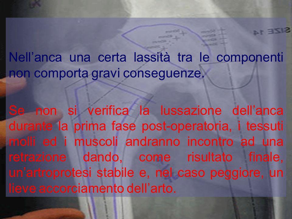 Nell'anca una certa lassità tra le componenti non comporta gravi conseguenze.