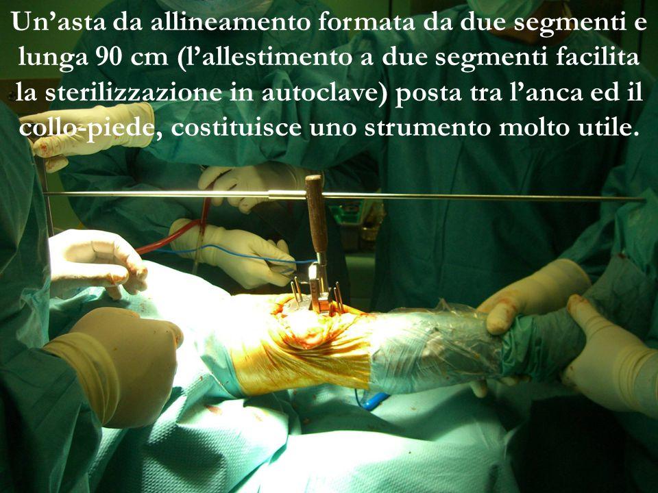 Un'asta da allineamento formata da due segmenti e lunga 90 cm (l'allestimento a due segmenti facilita la sterilizzazione in autoclave) posta tra l'anca ed il collo-piede, costituisce uno strumento molto utile.