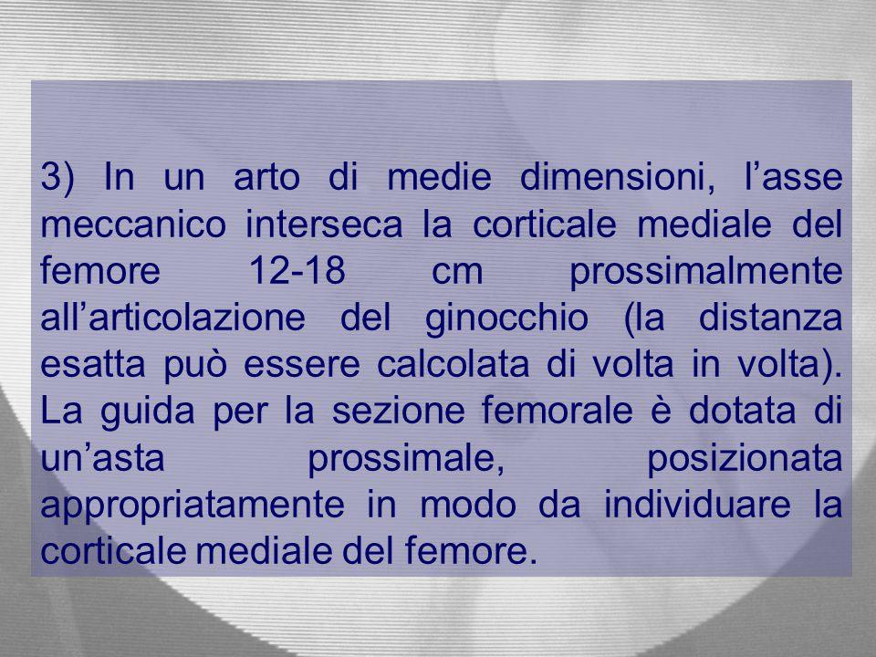 3) In un arto di medie dimensioni, l'asse meccanico interseca la corticale mediale del femore 12-18 cm prossimalmente all'articolazione del ginocchio (la distanza esatta può essere calcolata di volta in volta).