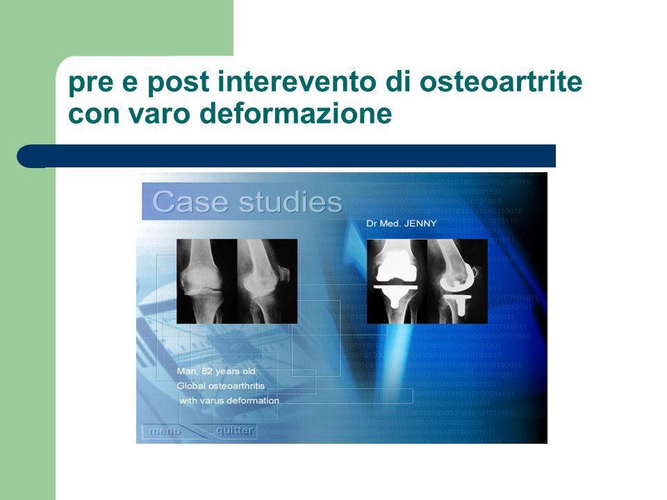 pre e post interevento di osteoartrite con varo deformazione