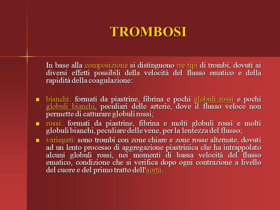 TROMBOSI
