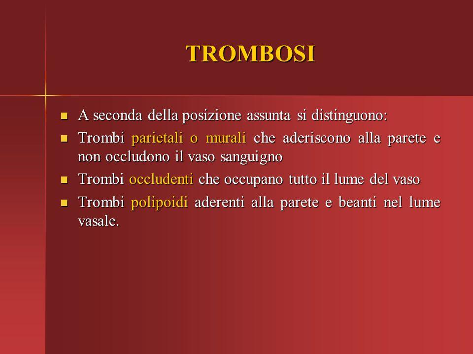 TROMBOSI A seconda della posizione assunta si distinguono: