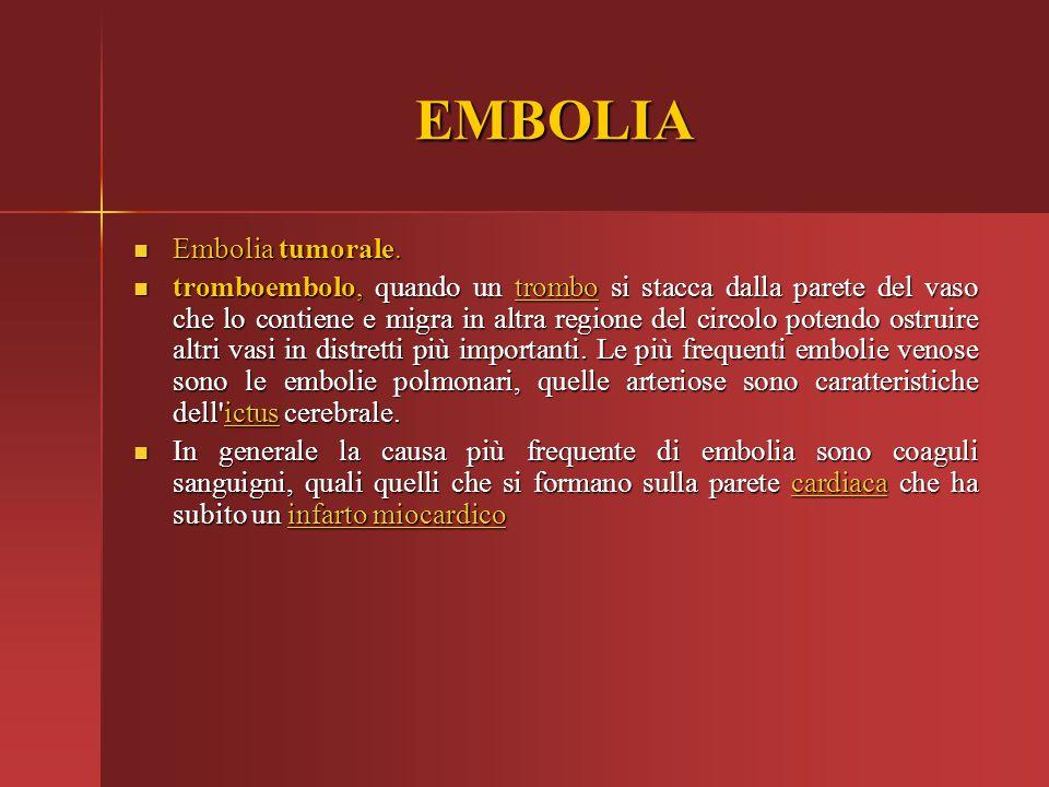 EMBOLIA Embolia tumorale.
