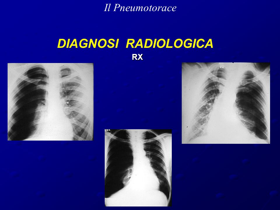 Il Pneumotorace DIAGNOSI RADIOLOGICA RX