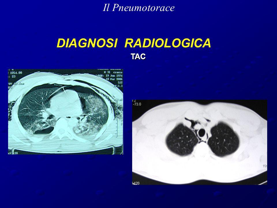 Il Pneumotorace DIAGNOSI RADIOLOGICA TAC