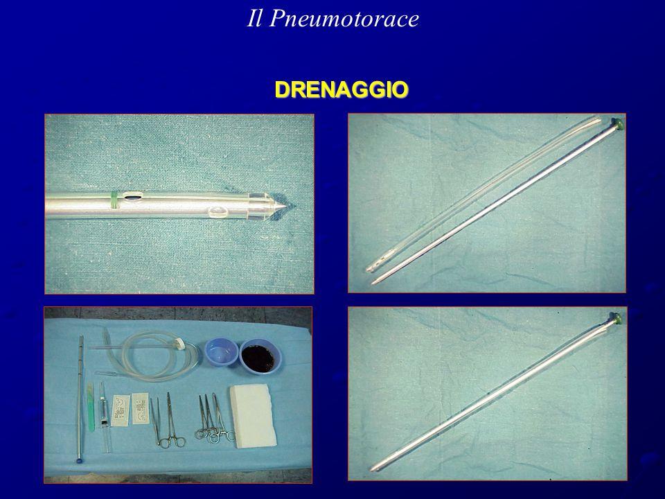 Il Pneumotorace DRENAGGIO