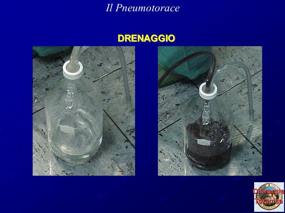 Il Pneumotorace DRENAGGIO Chirurgia Toracica 29 marzo 2010