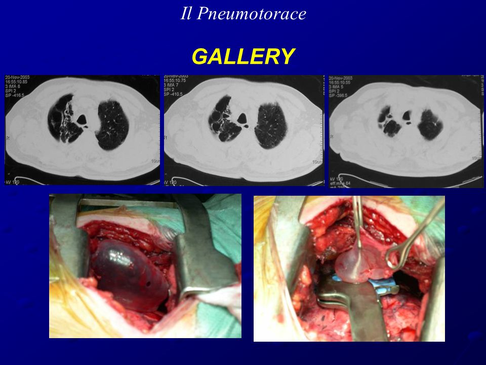 Il Pneumotorace GALLERY