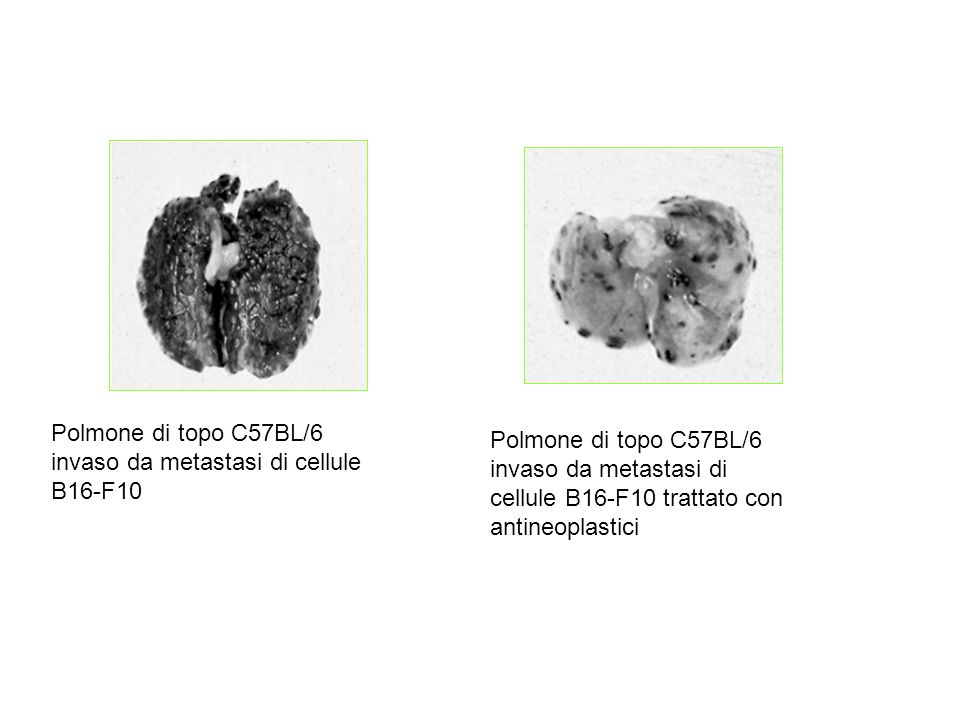 Polmone di topo C57BL/6 invaso da metastasi di cellule B16-F10