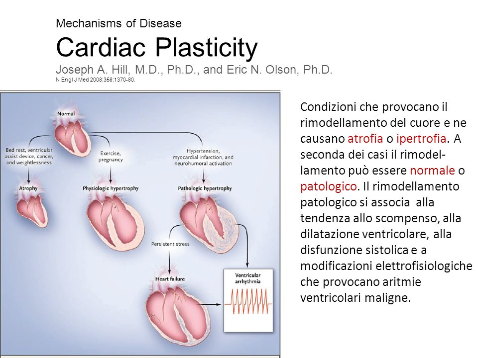 Mechanisms of Disease Cardiac Plasticity. Joseph A. Hill, M.D., Ph.D., and Eric N. Olson, Ph.D. N Engl J Med 2008;358:1370-80.