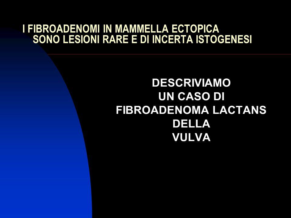 DESCRIVIAMO UN CASO DI FIBROADENOMA LACTANS DELLA VULVA
