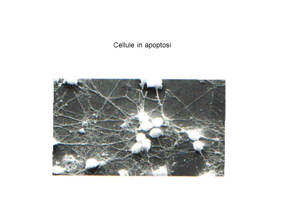 Cellule in apoptosi