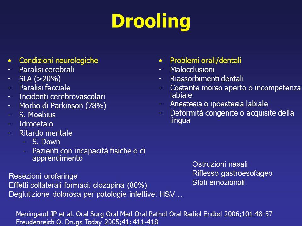 Drooling Condizioni neurologiche Paralisi cerebrali SLA (>20%)