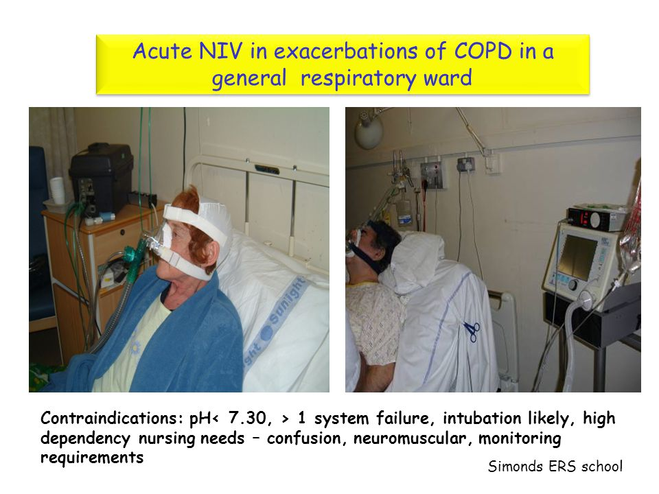 Acute NIV in exacerbations of COPD in a general respiratory ward