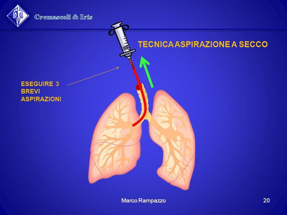 Cremascoli & Iris TECNICA ASPIRAZIONE A SECCO