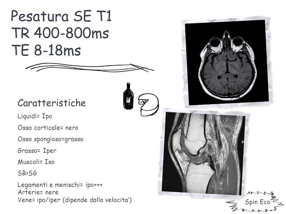 Pesatura SE T1 TR 400-800ms TE 8-18ms Caratteristiche Liquidi= Ipo