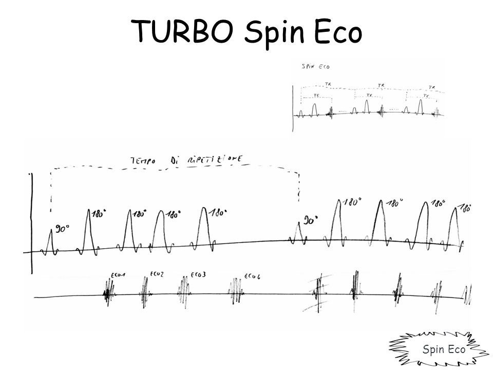 TURBO Spin Eco Spin Eco
