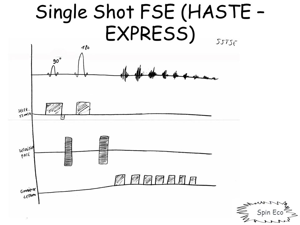Single Shot FSE (HASTE – EXPRESS)