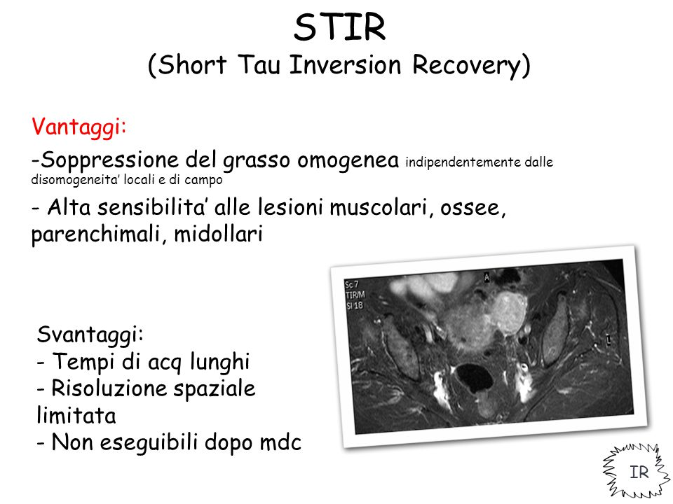 STIR (Short Tau Inversion Recovery)