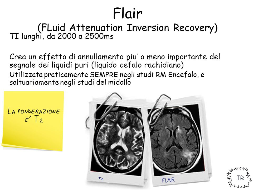 Flair (FLuid Attenuation Inversion Recovery)