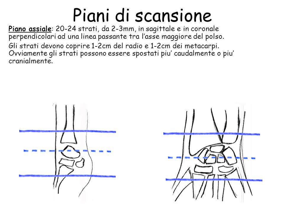 Polso protocollo d esame rm ppt video online scaricare for Piani del sito online