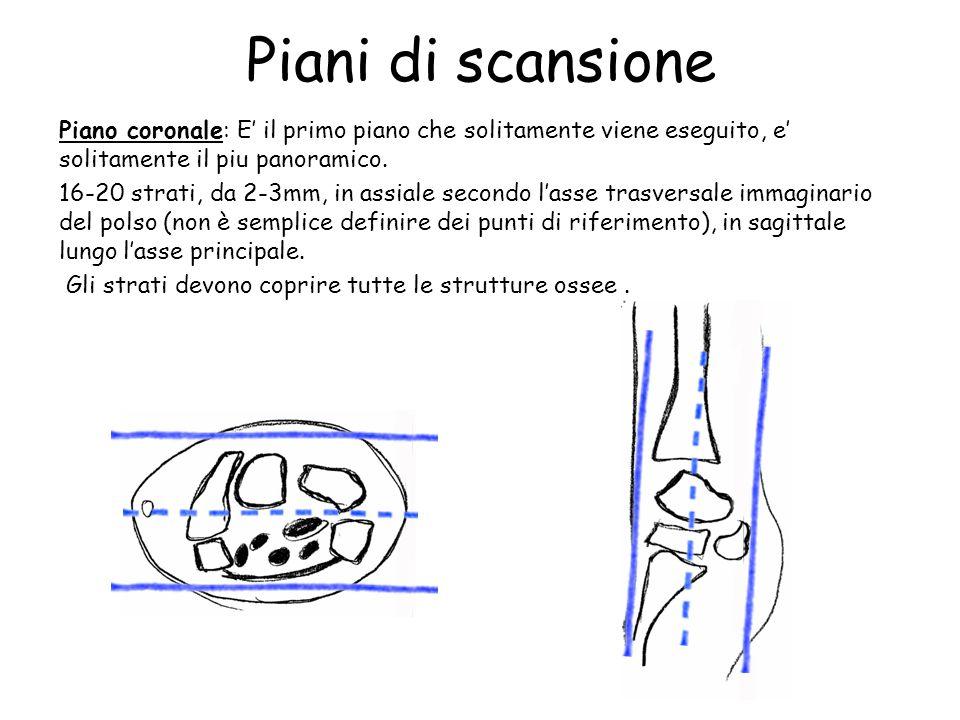 Piani di scansione Piano coronale: E' il primo piano che solitamente viene eseguito, e' solitamente il piu panoramico.