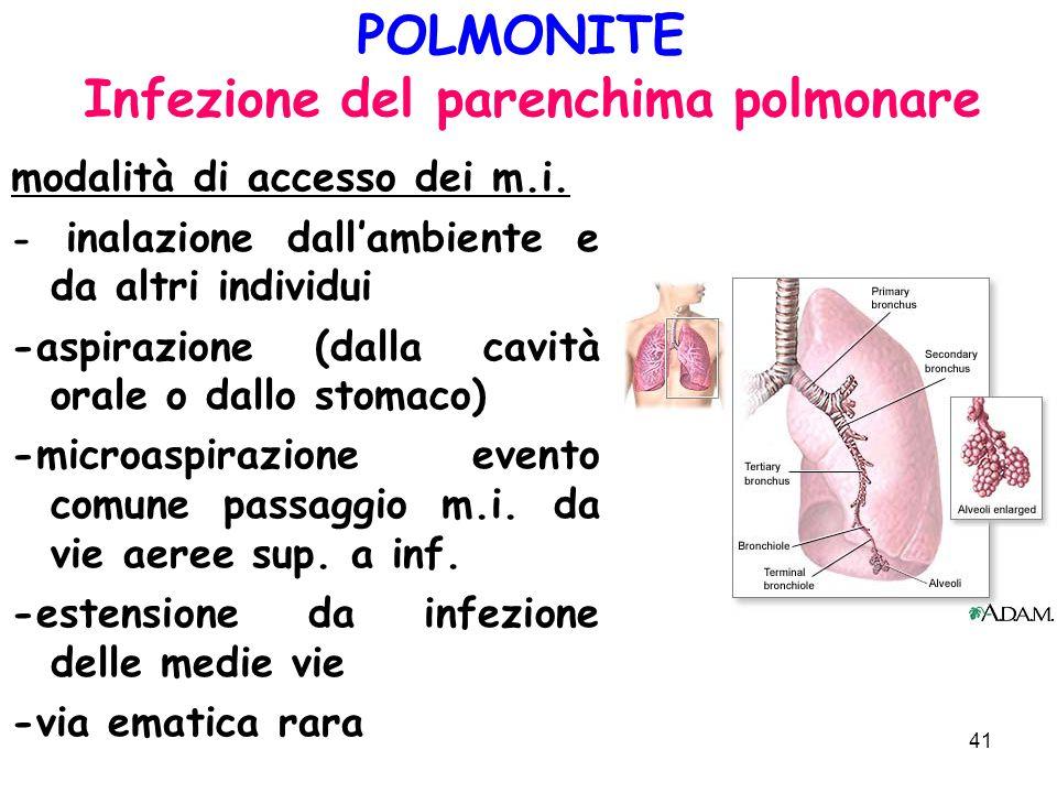 POLMONITE Infezione del parenchima polmonare