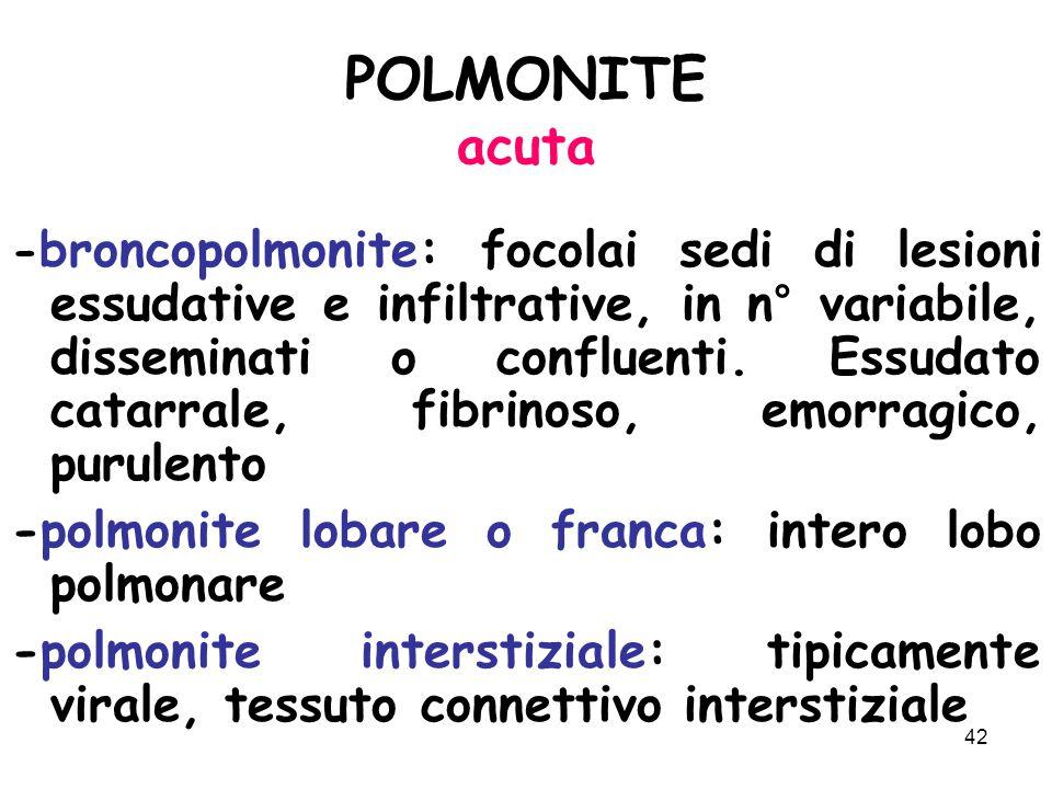 POLMONITE acuta -polmonite lobare o franca: intero lobo polmonare