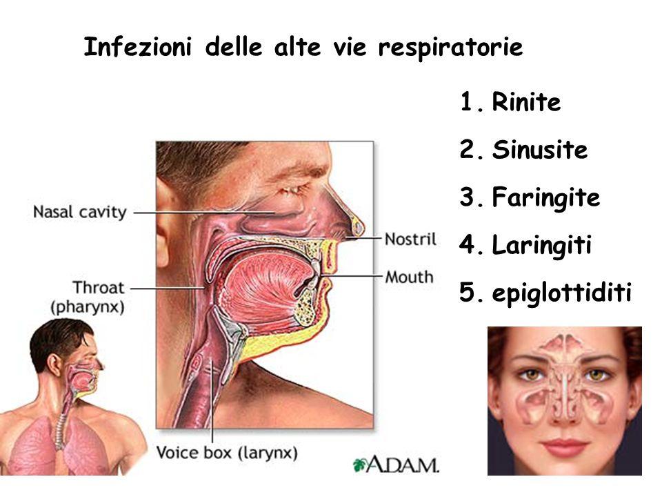Infezioni delle alte vie respiratorie