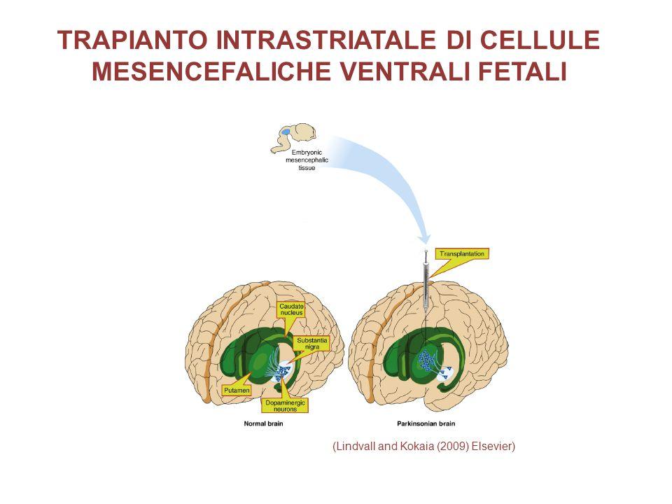TRAPIANTO INTRASTRIATALE DI CELLULE MESENCEFALICHE VENTRALI FETALI
