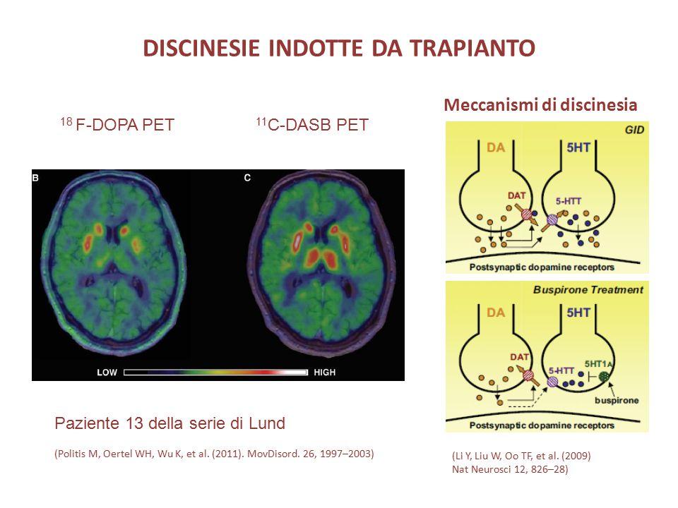 DISCINESIE INDOTTE DA TRAPIANTO