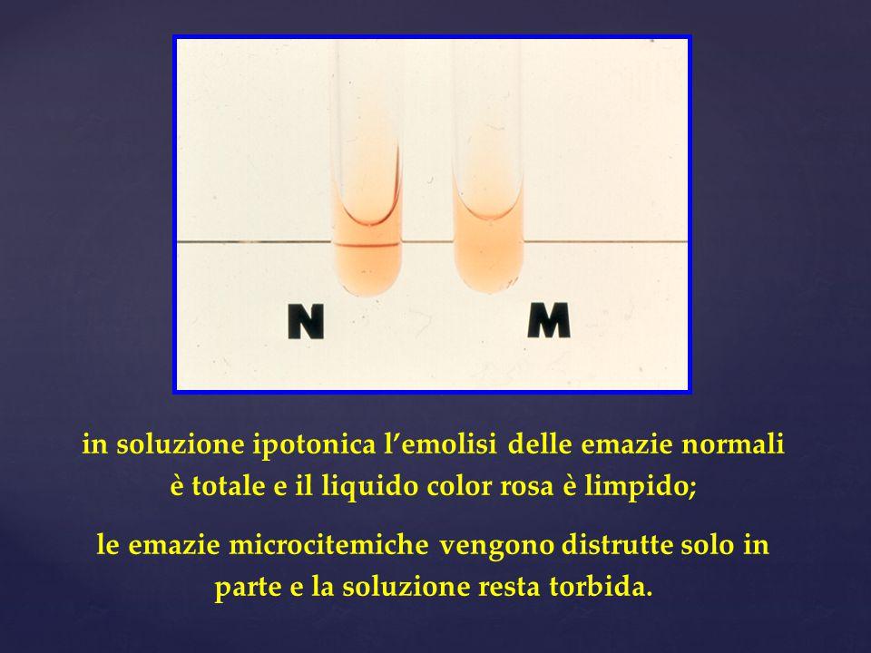 in soluzione ipotonica l'emolisi delle emazie normali è totale e il liquido color rosa è limpido;