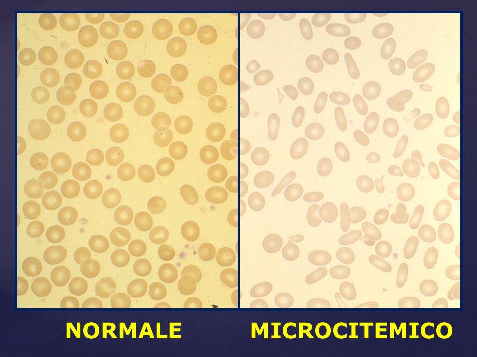 NORMALE MICROCITEMICO