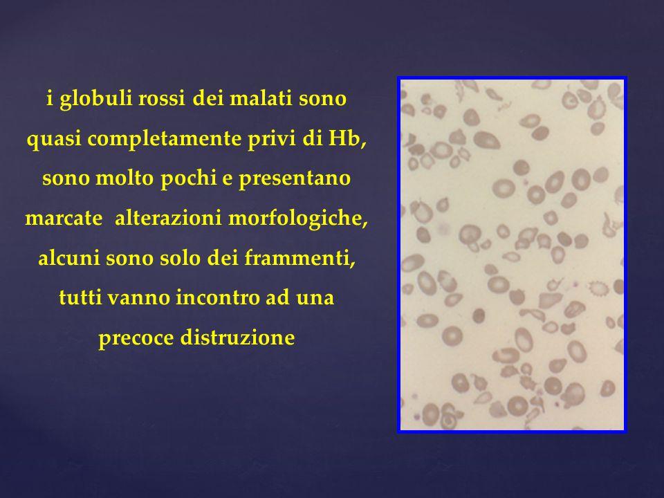 i globuli rossi dei malati sono quasi completamente privi di Hb, sono molto pochi e presentano marcate alterazioni morfologiche, alcuni sono solo dei frammenti, tutti vanno incontro ad una precoce distruzione