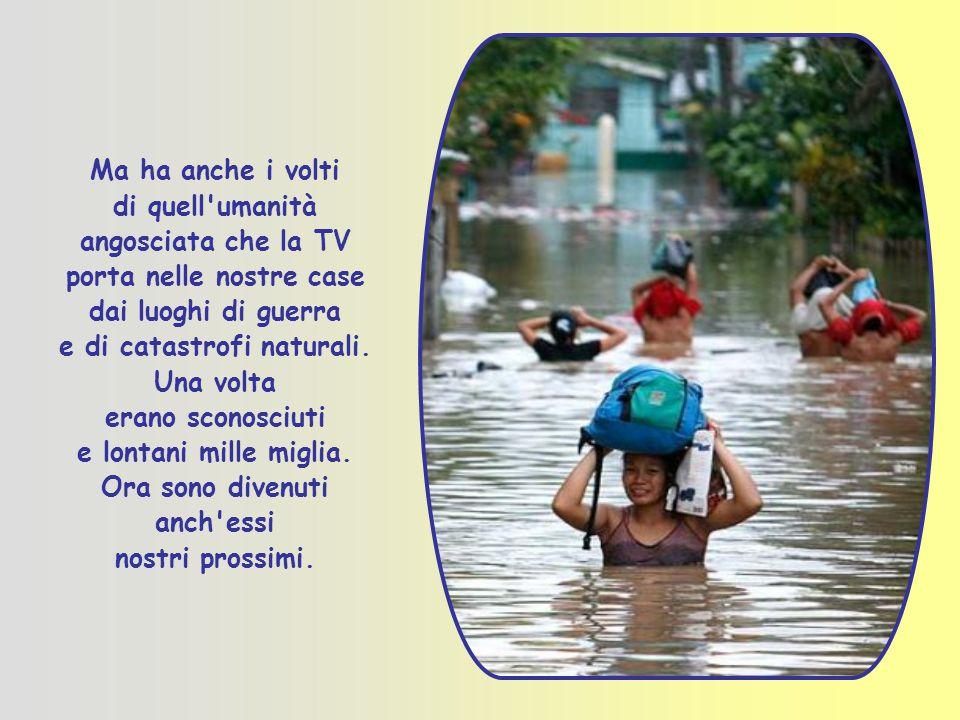 Ma ha anche i volti di quell umanità angosciata che la TV porta nelle nostre case dai luoghi di guerra e di catastrofi naturali.