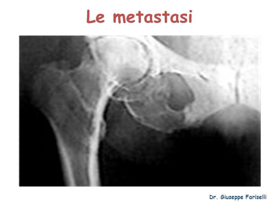 Le metastasi Dr. Giuseppe Fariselli