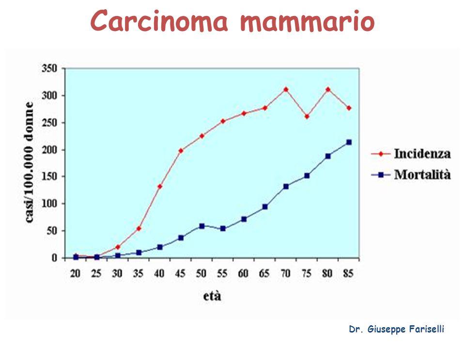 Carcinoma mammario Dr. Giuseppe Fariselli
