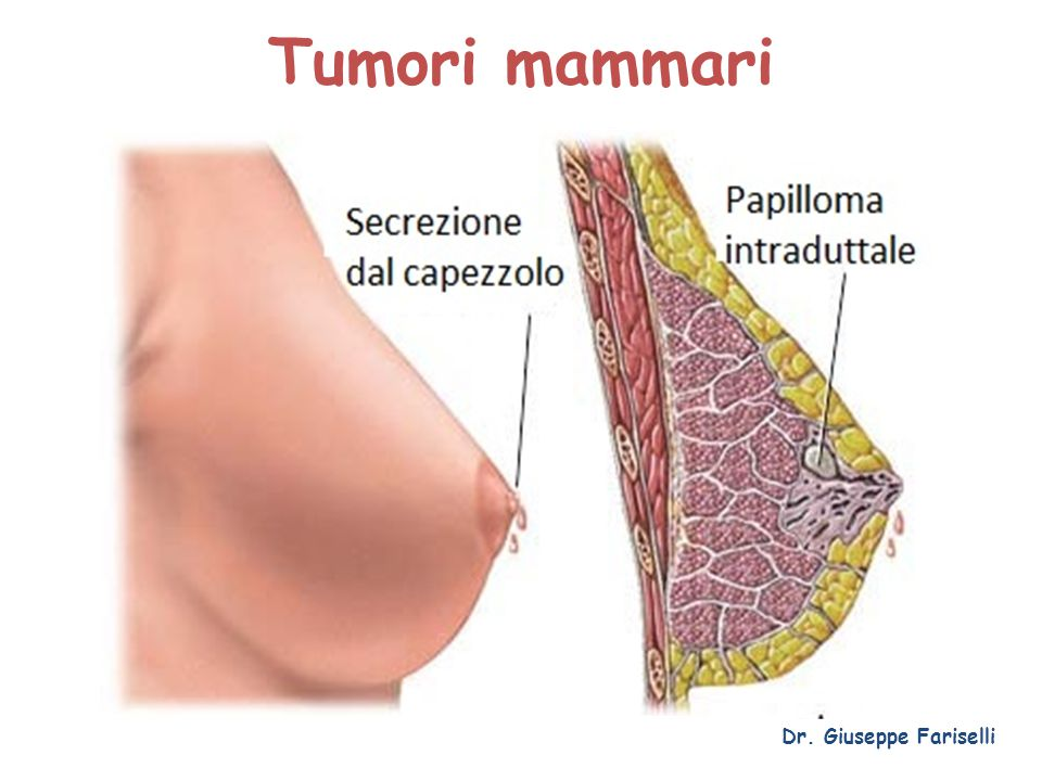 Tumori mammari Dr. Giuseppe Fariselli