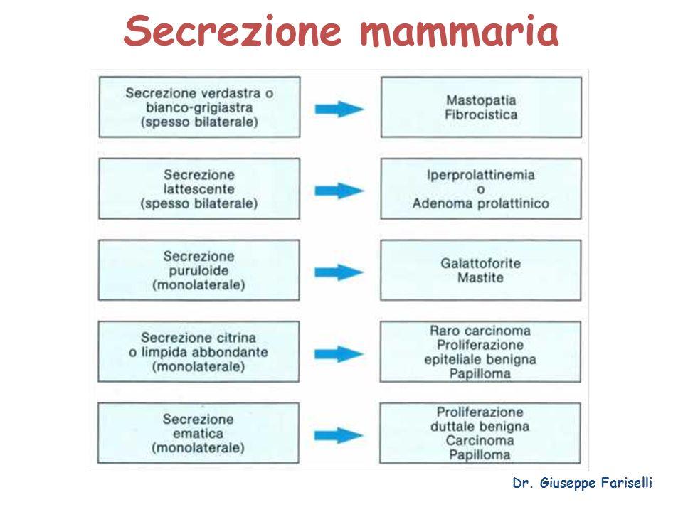 Secrezione mammaria Dr. Giuseppe Fariselli