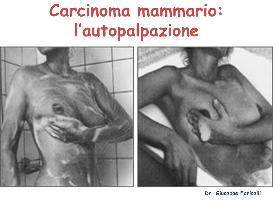 Carcinoma mammario: l'autopalpazione