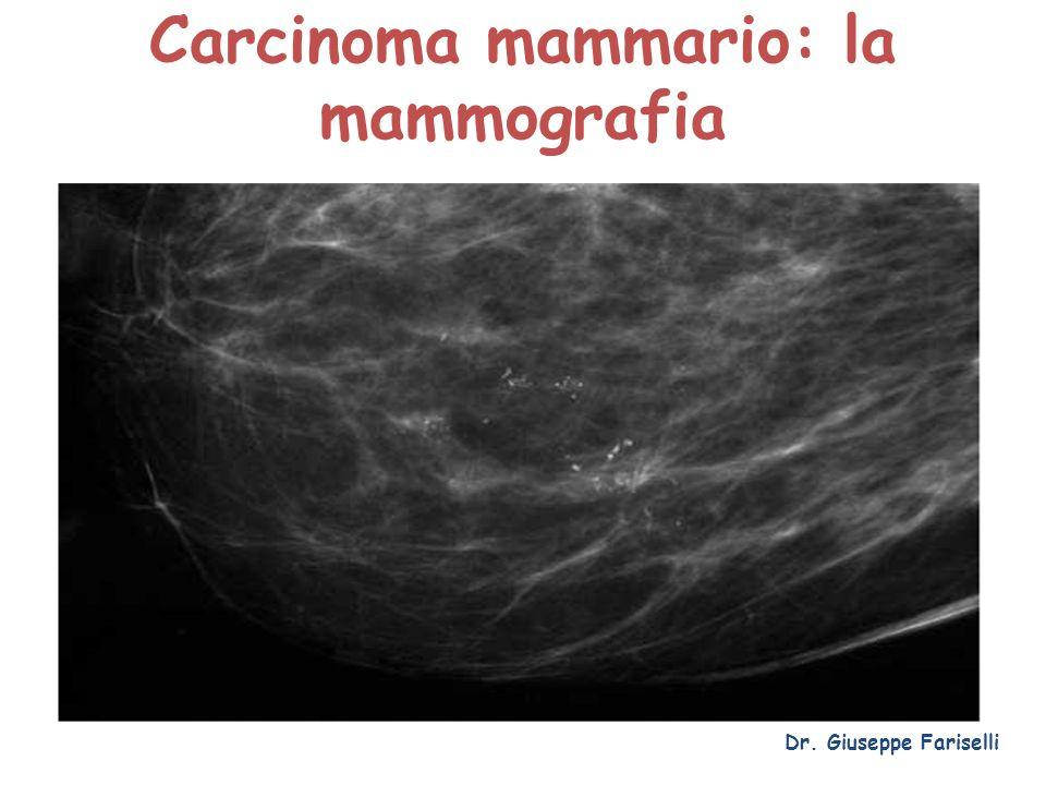 Carcinoma mammario: la mammografia