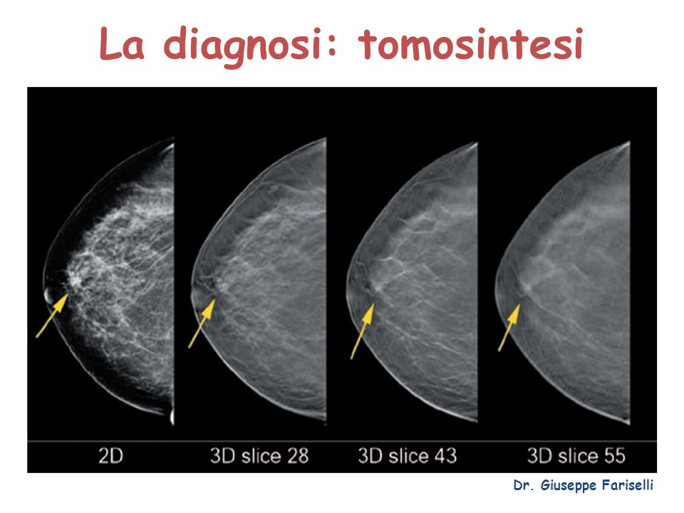 La diagnosi: tomosintesi