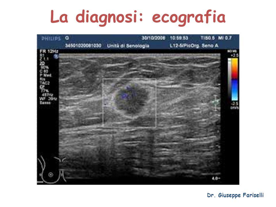La diagnosi: ecografia