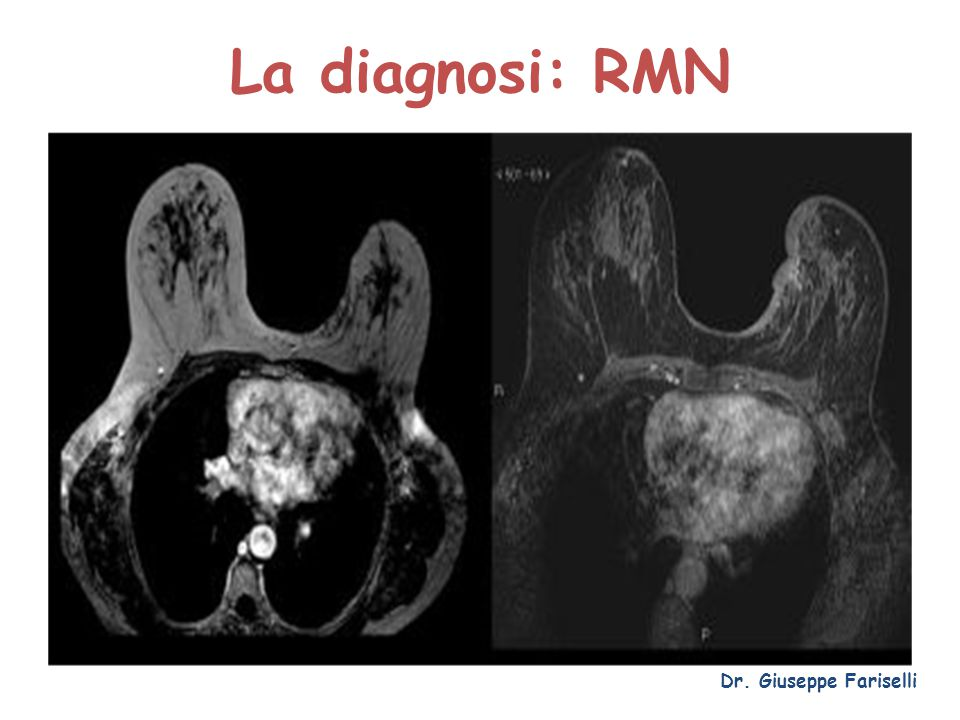 La diagnosi: RMN Dr. Giuseppe Fariselli