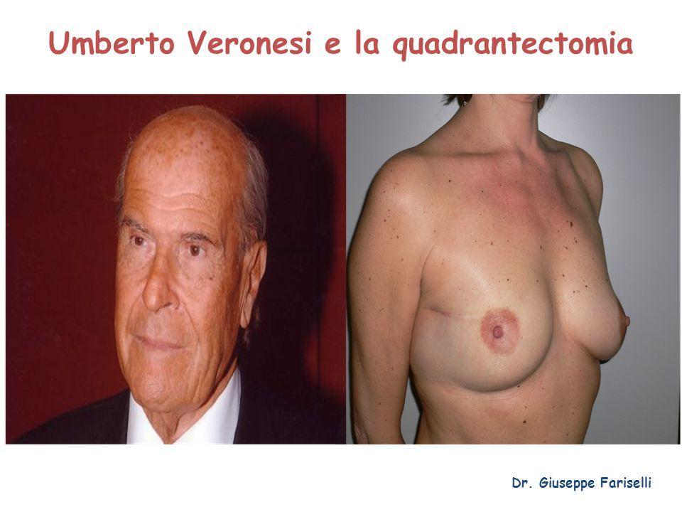 Umberto Veronesi e la quadrantectomia