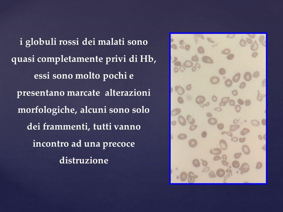 i globuli rossi dei malati sono quasi completamente privi di Hb, essi sono molto pochi e presentano marcate alterazioni morfologiche, alcuni sono solo dei frammenti, tutti vanno incontro ad una precoce distruzione